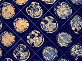 Rôle du fer dans la cognition chez le Parkinsonien