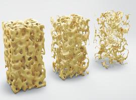 Taux de patients non traités pour l'ostéoporose après une fracture ostéoporotique