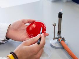 Antwerpse onderzoekers vinden gen dat blaasinfectie kan doen ontsporen