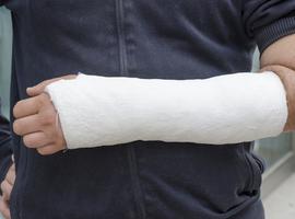 Casus van een dorsale carpometacarpale luxatie van devier laatste stralen van de hand