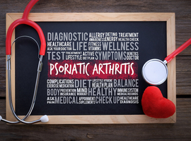 SELECT-PsA-1 bevestigt de doeltreffendheid van upadacitinib na 24 weken bij psoriatische artritis