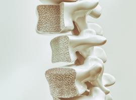 Prévention de l'ostéoporose et santé cardiovasculaire: cherchez le lien?