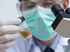 Microbiote et symptômes du bas appareil urinaire