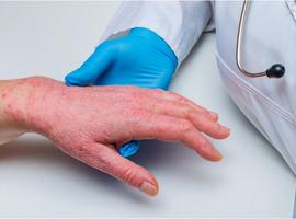 Dupilumab op lange termijn in de dagelijkse praktijk: doeltreffend en veilig