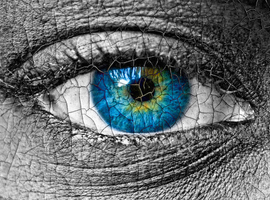Het primaire sjögrensyndroom: droge ogen, droge mond en zo veel meer…
