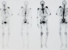 Le rôle des cellules cancéreuses dans la formation des métastases diffère selon le type de cancer