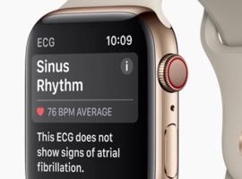 La nouvelle Apple Watch dépiste les troubles du rythme
