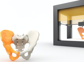 Les implants imprimés en 3D sont-ils sûrs et efficaces? (KCE)