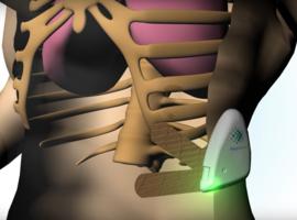 RespiraSense: un capteur connecté non invasif pour mesurer la respiration et détecter les complications