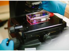 Oncocentrum UAntwerpen verkneukelt zich over uniek toestel