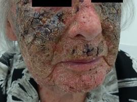 Inzending mooiste beeld: 5-fluorouracil als huidverjongende therapie