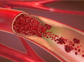 Fréquentes thromboses artérielles chez des patients COVID-19 décédés