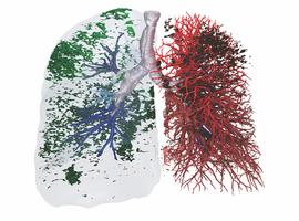 FPI: l'analyse TDM quantitative avec imagerie fonctionnelle est supérieure à la spirométrie «classique»