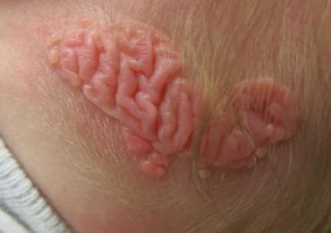Benigne, folliculo-sebaceus cystisch hamartoom
