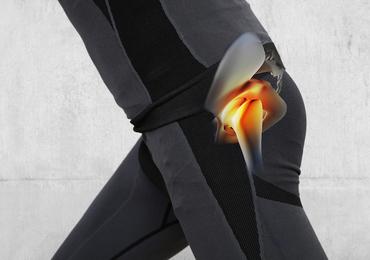 Douleur aiguë de la hanche chez l'adulte: pensez à la moelle osseuse