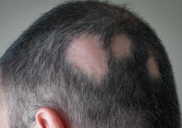 Attention aux courges très amères : elles pourraient entraîner une chute de cheveux massives