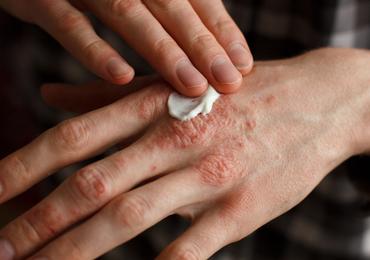 Psoriasis: niet alleen huidafwijkingen