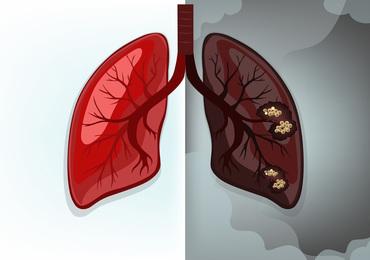 Psychologische ondersteuning Belgische longkankerpatiënten kan beter