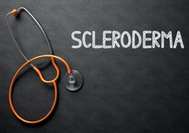 Une greffe de cellules souches en cas de sclérodermie?