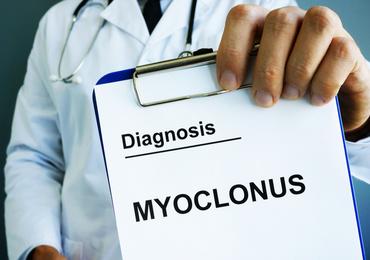 Veralgemeende myoclonus in samenhang met covid-19