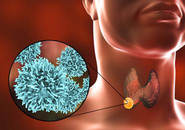 Les cancers thyroïdiens avancés bénéficient-ils également de l'émergence des nouvelles molécules?