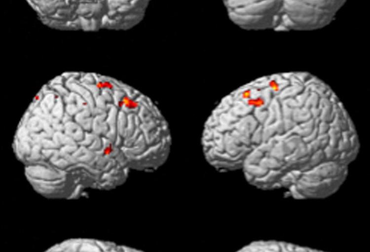 Adhd Gevolg Van Een Verbinding Tussen De Kleine Hersenen En