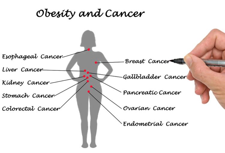 Obesitas vergroot risico op minstens zeven soorten kanker