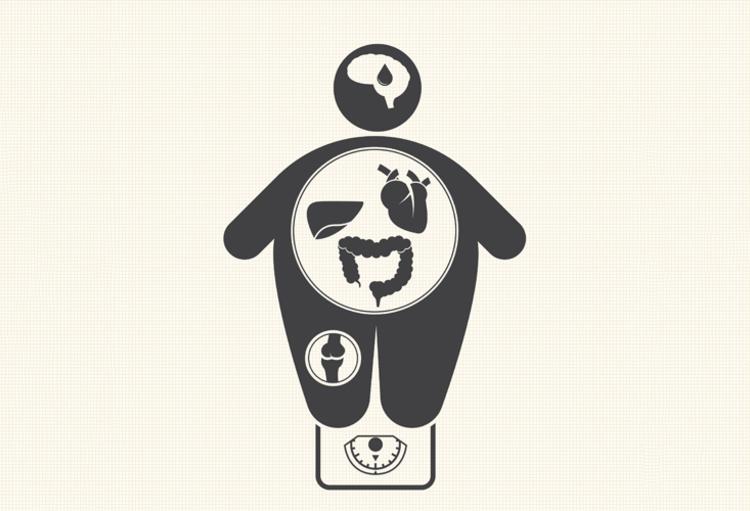 Jurnal Doc : obesitas