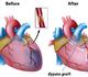 Pontage aortocoronarien: mieux vaut un DAPT que l'aspirine seule pour la prévention de la défaillance du greffon saphène