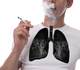 Le tabagisme à l'origine de huit cas de cancer du poumon sur dix