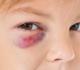 Violence à l'égard de l'enfant dans le sport: association à des symptômes psychiques et à la qualité de vie à l'âge adulte
