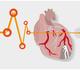 Insuffisance cardiaque aiguë: mortalité plus élevée chez les patients Covid