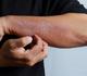 Des dermatologues alertent sur des signes cutanés, d'autres appellent à la