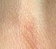 Suisse: Covid-19 sur un échantillon de peau d'une patiente testée négative