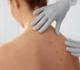 Cancer de la peau: une visite gratuite chez le dermatologue pour 1.500 Belges