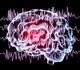Une campagne pour lutter contre les discriminations liées à l'épilepsie