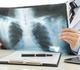 Le radiologue aura-t-il disparu dans 10 ans ?