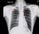 Une Clinique des nodules pulmonaires à Liège, une première en Wallonie
