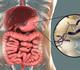 Traitement de l'infection à H. pylori pour la prévention du cancer gastrique métachrone
