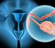 Lymfadenectomie in gevorderde ovariumkanker