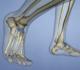 Köhler de l'os naviculaire: pathologie ou variante d'ossification?
