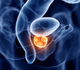 Prostaatkanker: een app om de risicoscore te bepalen