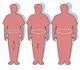 La chirurgie de l'obésité chez les ados ne doit être pratiquée qu'exceptionnellement