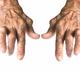 EULAR-aanbevelingen voor het management van reumatoïde artritis